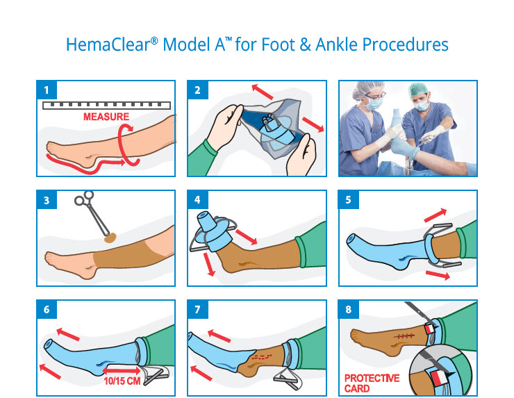 Diagram HemaClear® Model A